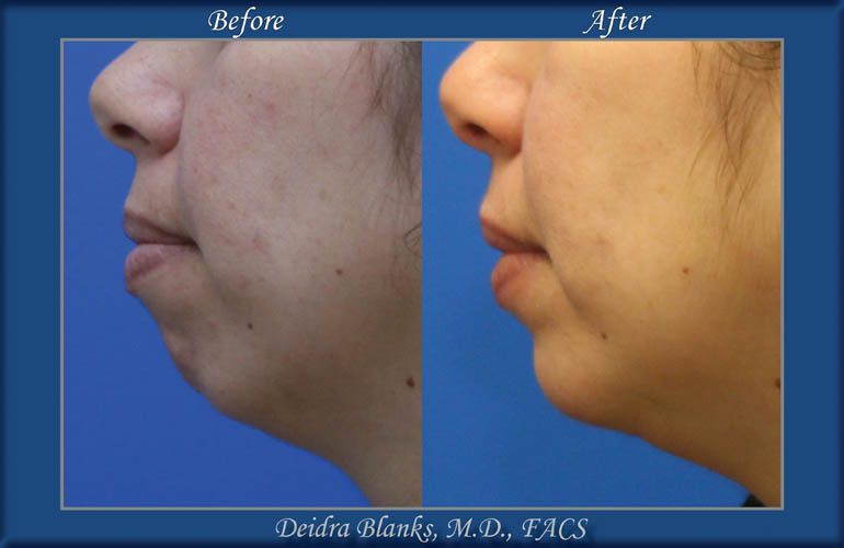 Chin Augmentation Before & After img. 1