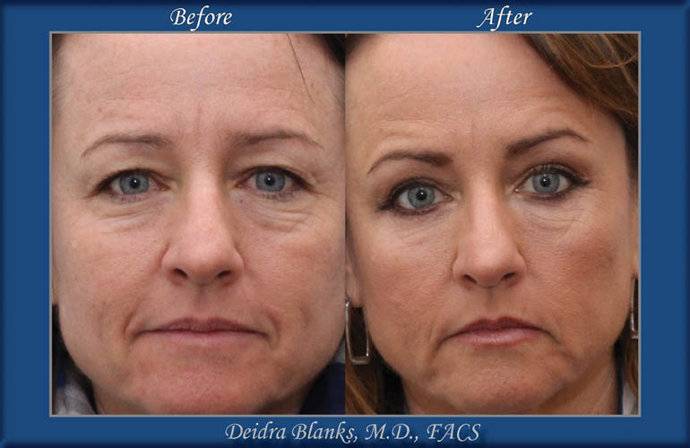 Eyelid Surgery (Blepharoplasty) Before & After by Dr. Deidra Blanks img. 1