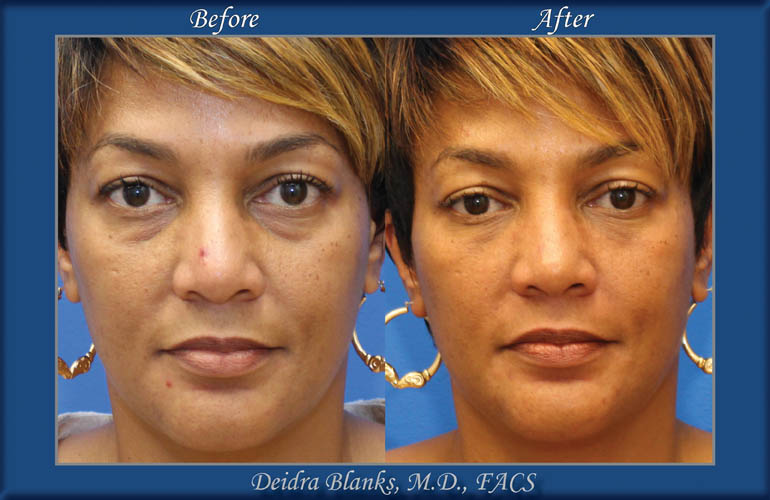 Eyelid Surgery (Blepharoplasty) Before & After by Dr. Deidra Blanks img. 2