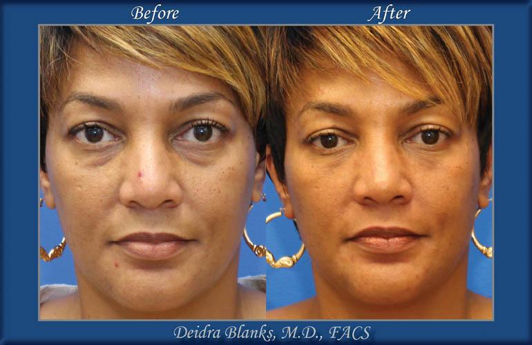 Eyelid Surgery (Blepharoplasty) Before & After by Dr. Deidra Blanks img. 2