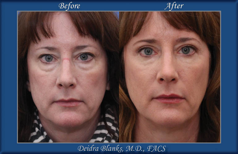 Eyelid Surgery (Blepharoplasty) Before & After by Dr. Deidra Blanks img. 3