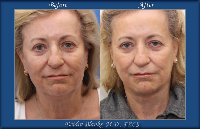 Facelift - Before and After img 1