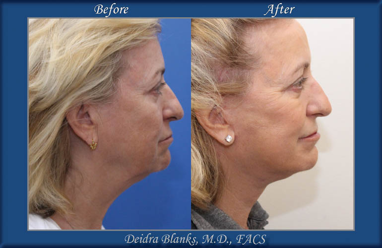 Facelift Before and After by Dr. Deidra Blanks img. 2