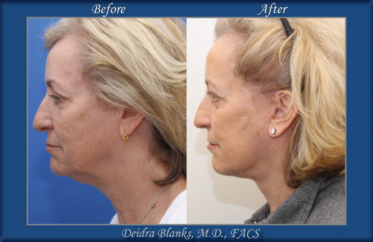 Facelift Before and After by Dr. Blanks img. 3