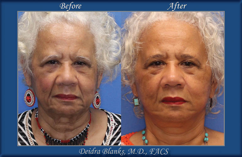 Facelift Before and After img. 4