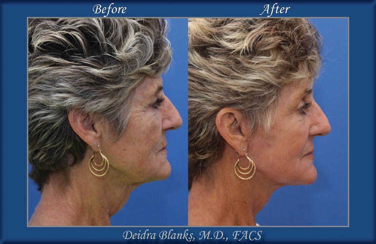 Facelift Before and After by Dr. Deidra Blanks img. 13