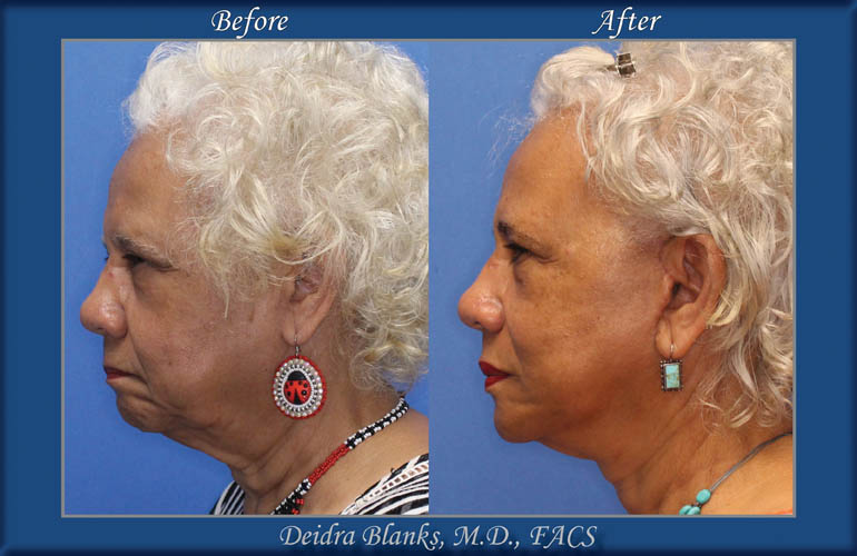 Facelift Before and After by Dr. Blanks img. 5