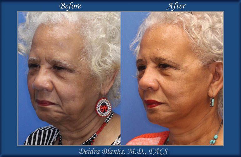 Facelift Before & After img. 6