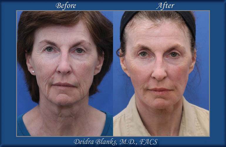 Before-and-After-Facelift-Dr. Deidra Blanks img. 7