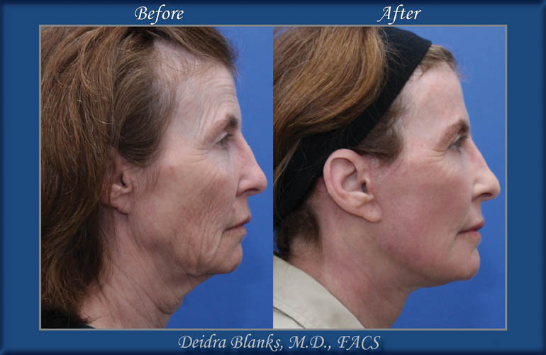 Facelift Before and After by Dr. Deidra Blanks img. 8