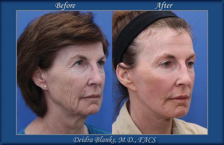 Facelift Before and After by Dr. Deidra Blanks img. 9