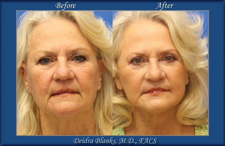 Facelift Before and After by Dr. Deidra Blanks img. 10