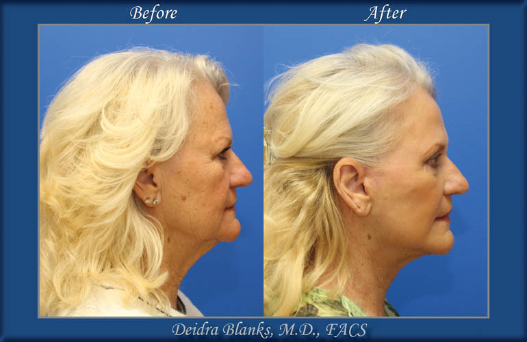 Facelift Before and After by Dr. Deidra Blanks img. 11