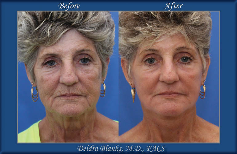 Facelift Before and After by Dr. Deidra Blanks img. 12