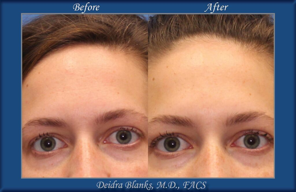 Botox Before & After img. 2